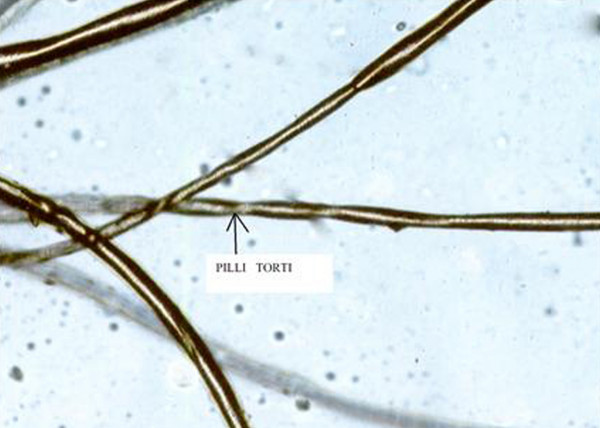 "Microscopic examination of hair revealed classical sign of pili torti, a typical sign of Menkes disease. Also known as ""Twisted hairs,"" pili torti is characterized by short and brittle hairs that appear flattened and twisted when viewed through a microscope.  Courtesy BioMed Central."